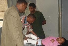 In Äthiopien wird ein Kind mit Verletzungen an den Beinen von einem Freiwilligen im Krankenpflegepraktikum unter Aufsicht eines Arztes medizinisch versorgt.